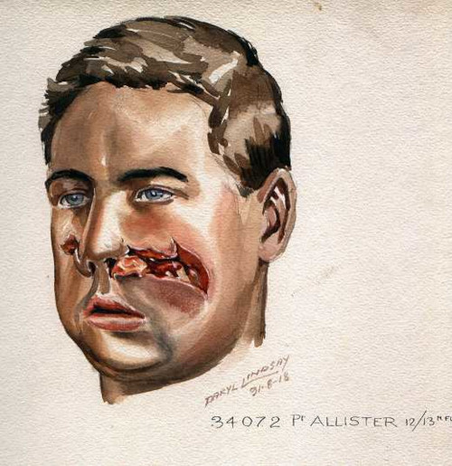 Watercolour of Private Allister, who was a patient of Sir Harold Gillies.